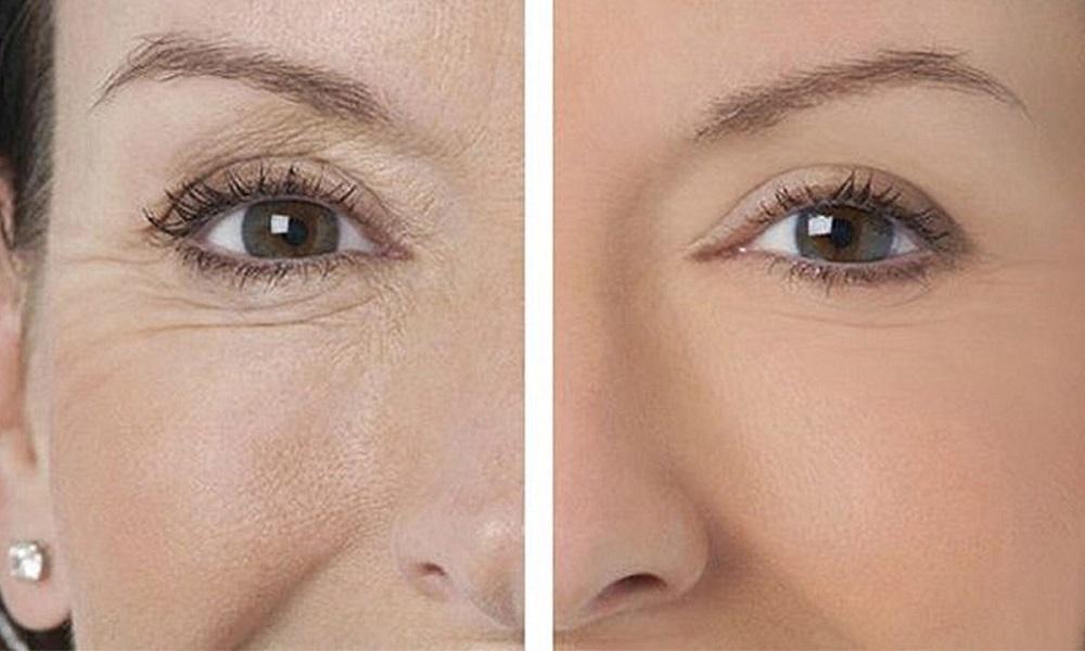 морщины до и после