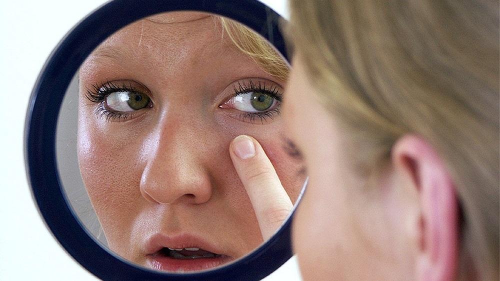 женщина рассматривает кожу