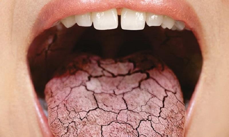 сухость во рту симптомы обезвоживания