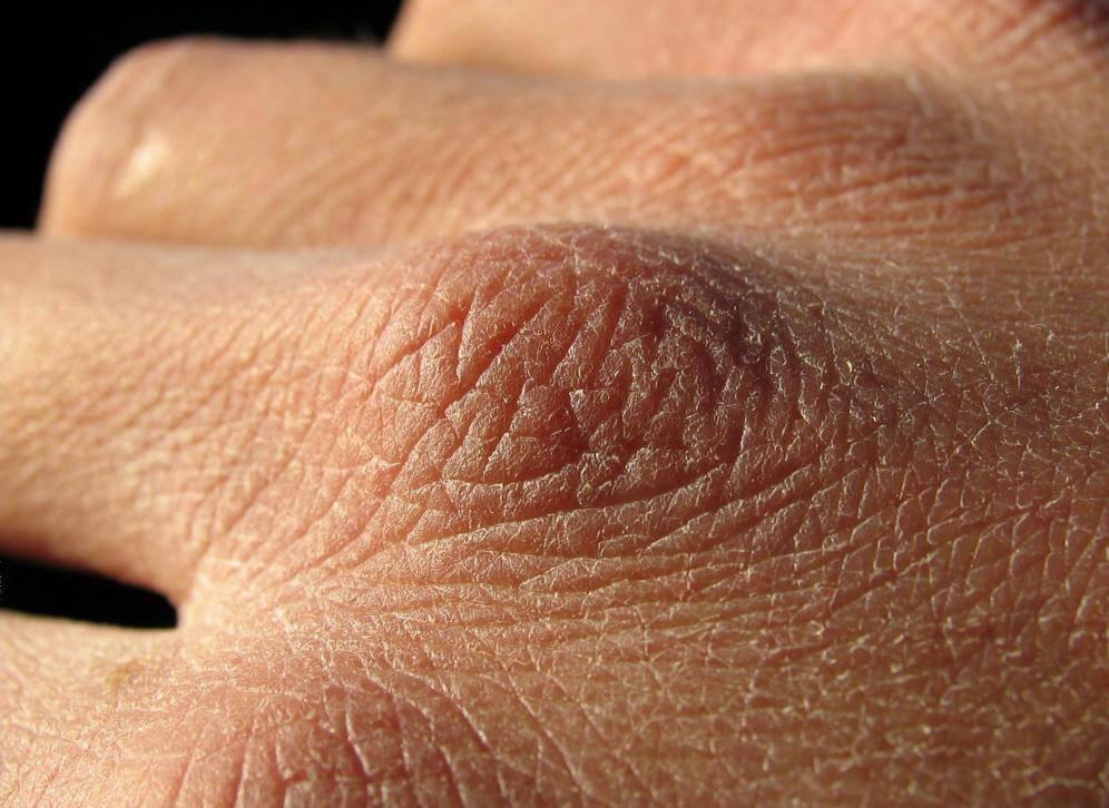 сухая обезвоженная кожа