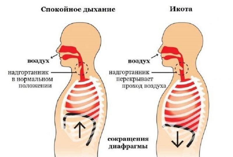 механизм икоты