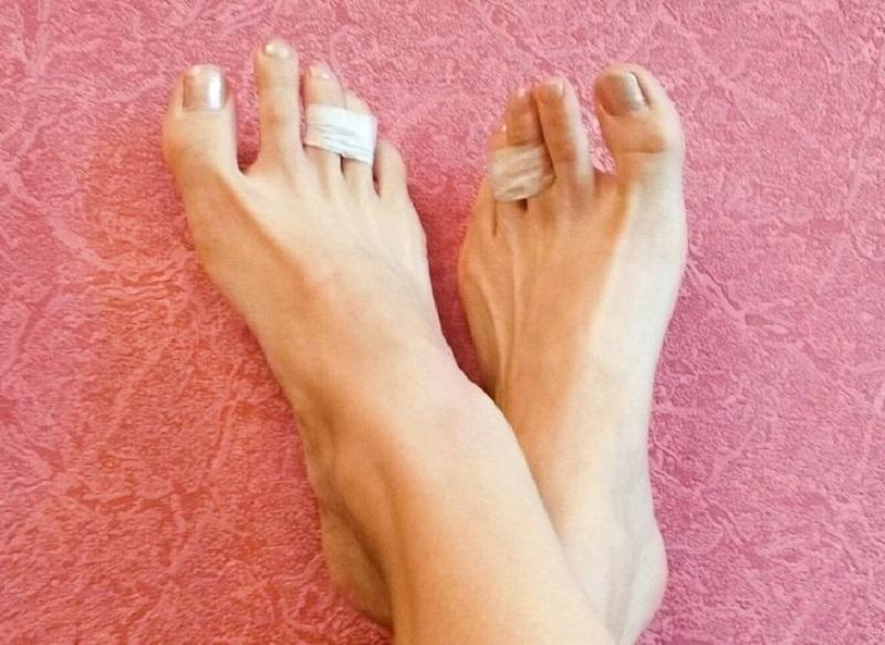 склеенные пальцы от усталости ног