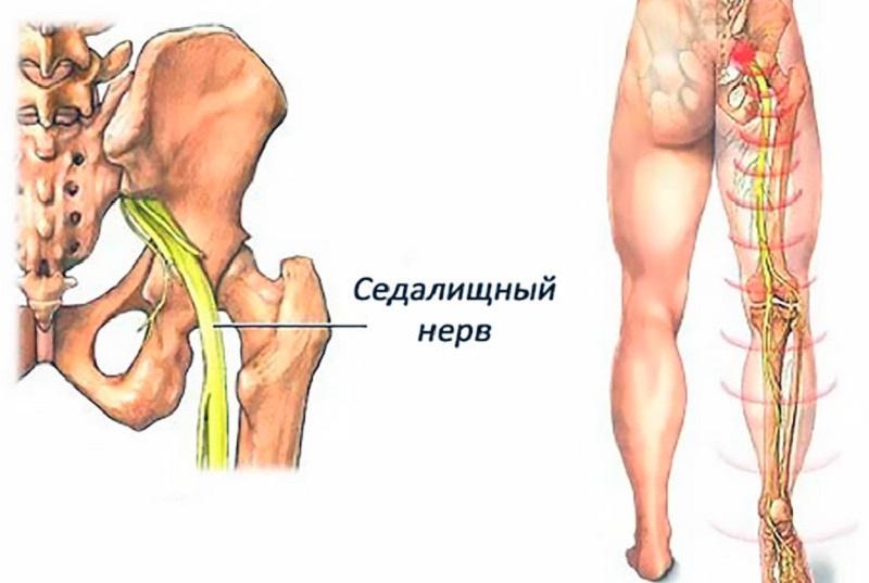 воспаление седалищного нерва схема