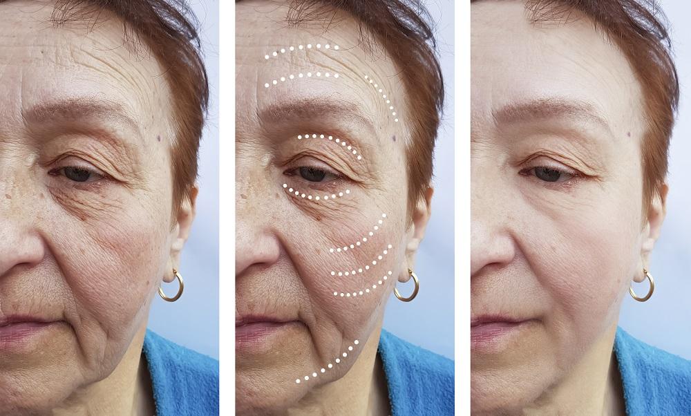 женщина лечит морщины до и после